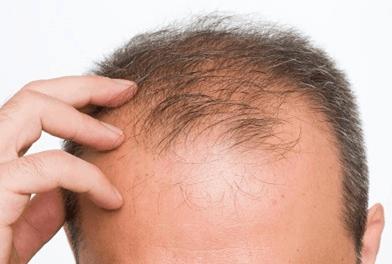 Mezzi a emarginato di capelli